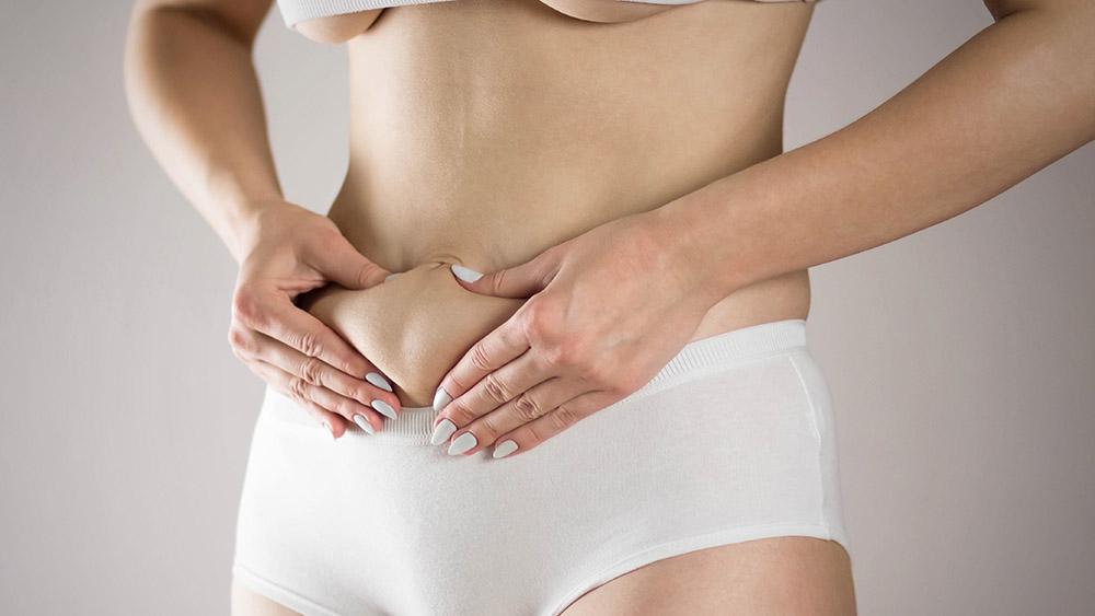 Fettsuging av mage